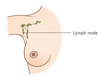 Lymph nodes in the female breast