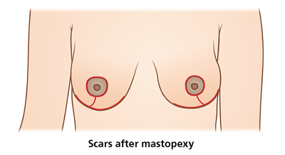 Schematic picture of breasts after mastopexy