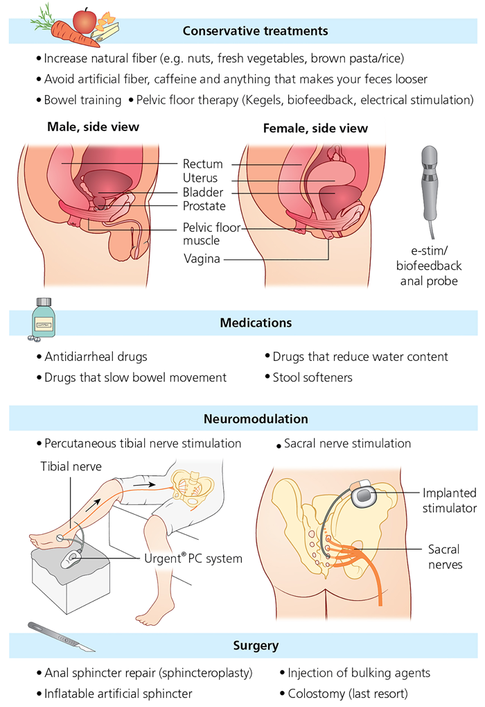 Treatment options for faecal incontinence
