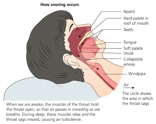 How snoring occurs
