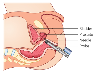 Schematic picture of an ultrasound probe inserted in the rectum