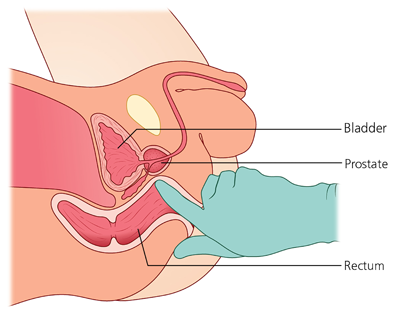 Schematic picture of a digital rectal examination (DRE)