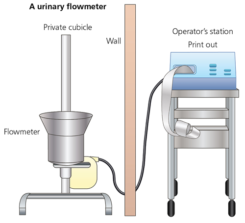 Schematic picture of a urine flow test