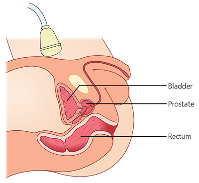Schematic picture of an ultrasound scan of the prostate